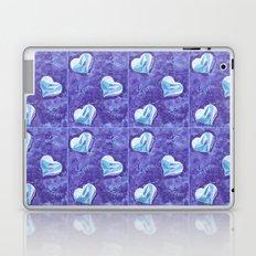 Blue hearts pattern Laptop & iPad Skin