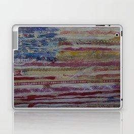 A Nation's Hope Laptop & iPad Skin