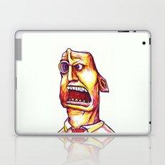 Filip Laptop & iPad Skin