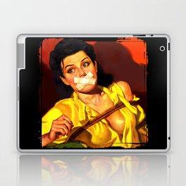 Gagged Laptop & iPad Skin