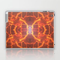 FX#287 - Tied To Our Roots Laptop & iPad Skin