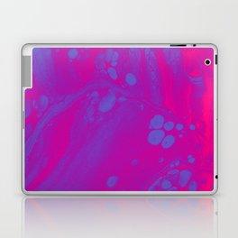 Can't Hurry Love Laptop & iPad Skin