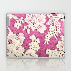 pink lace-photograph of vintage lace Laptop & iPad Skin