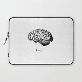 Brain Anatomy - Use It Laptop Sleeve