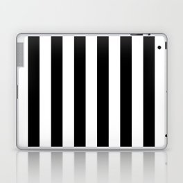 Parisian Black & White Stripes (vertical) Laptop & iPad Skin