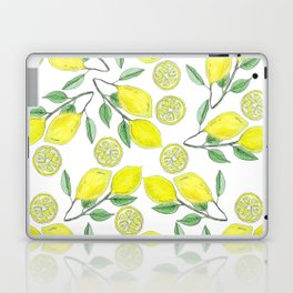 Life handed me lemons Laptop & iPad Skin