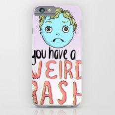 Weird Rash iPhone 6s Slim Case