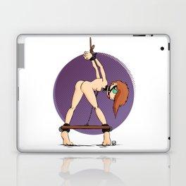 Uncomfortable Laptop & iPad Skin
