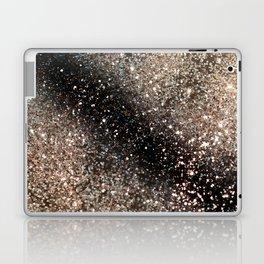 Sparkling GOLD BLACK Lady Glitter #3 #decor #art #society6 Laptop & iPad Skin