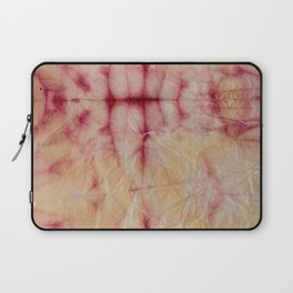 Pink Pulse Laptop Sleeve
