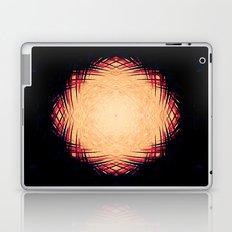Consumption Laptop & iPad Skin