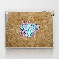 DIAMOND HANDS Laptop & iPad Skin