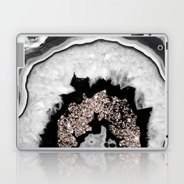 Gray Black White Agate with Rose Gold Glitter #1 #gem #decor #art #society6 Laptop & iPad Skin