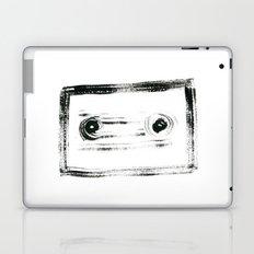 TAPE Laptop & iPad Skin