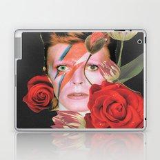 More than human (Bowie) Laptop & iPad Skin