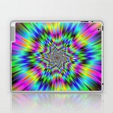 Rainbow Star Laptop & iPad Skin