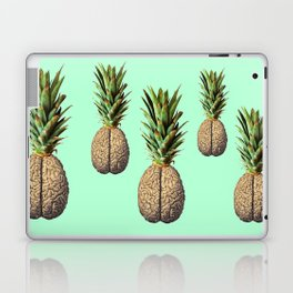 Pinebrain (pineapple) Laptop & iPad Skin
