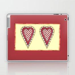 My Checkered Heart Laptop & iPad Skin