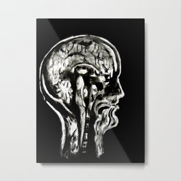 January 1, 2016 (Year of Radiology) Metal Print