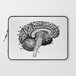 Brain 2 Laptop Sleeve