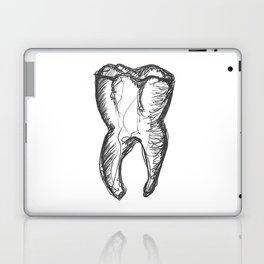 Anatomical Tooth Ink Sketch Laptop & iPad Skin
