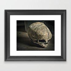 Fetal Skull Framed Art Print