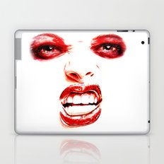 Damaged Laptop & iPad Skin