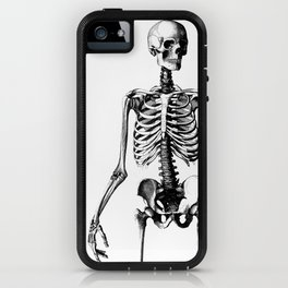 Straight the pose iPhone Case