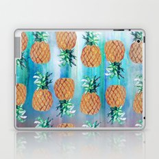 Pineapple Beach Aqua Laptop & iPad Skin