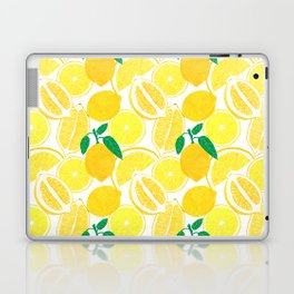 Lemon Harvest Laptop & iPad Skin