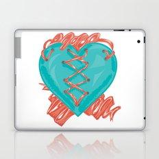Ribbon Heart Laptop & iPad Skin
