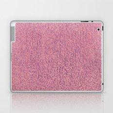 Motel Pink Shag Pile Carpet Laptop & iPad Skin
