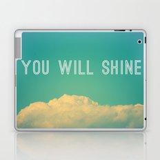 Baby, you will shine! Laptop & iPad Skin