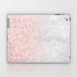 Blush Pink Sparkles on White and Gray Marble Laptop & iPad Skin