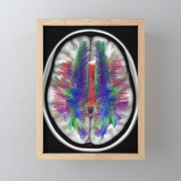 Axial Fibers Framed Mini Art Print