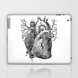 Human Heart Anatomy Detailed Illustration Laptop & iPad Skin