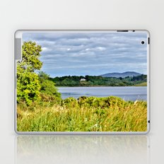 Their View Is Better! Laptop & iPad Skin