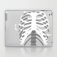Your Body On Skate Laptop & iPad Skin