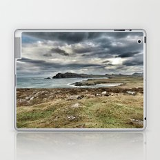 Ireland Calls Laptop & iPad Skin