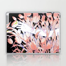 Ouch. Laptop & iPad Skin