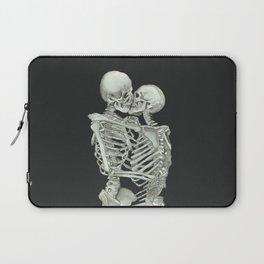 Valentine's Day: Skeleton Kiss Laptop Sleeve