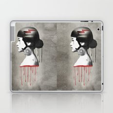 Tear Laptop & iPad Skin