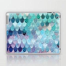 SUMMER MERMAID II Laptop & iPad Skin