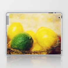 All puckered up ! Laptop & iPad Skin