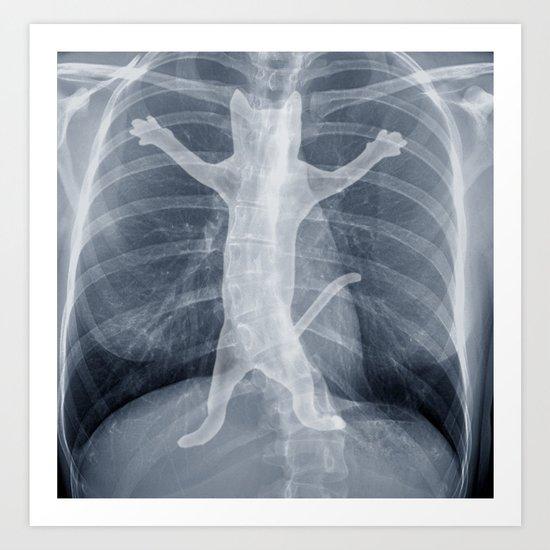 x-ray Art Print