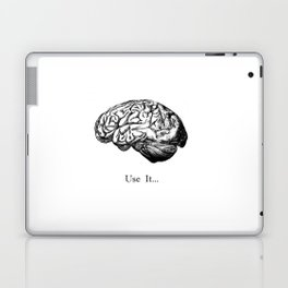 Brain Anatomy - Use It Laptop & iPad Skin