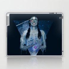 Brain Damage Laptop & iPad Skin