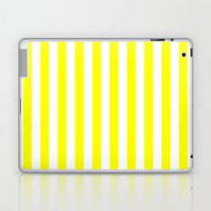 Vertical Stripes (Yellow/White) Laptop & iPad Skin
