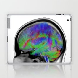 Sagittal Clear Laptop & iPad Skin
