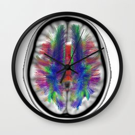 Axial Fibers Clear Wall Clock